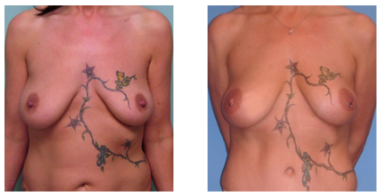 Breast Lipoaugmentation (Fat Grafting)