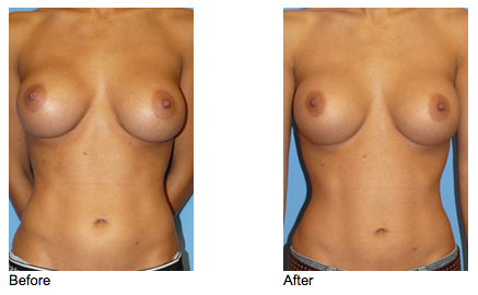 Before - 27 year old female exchanged her saline implants with Silicone