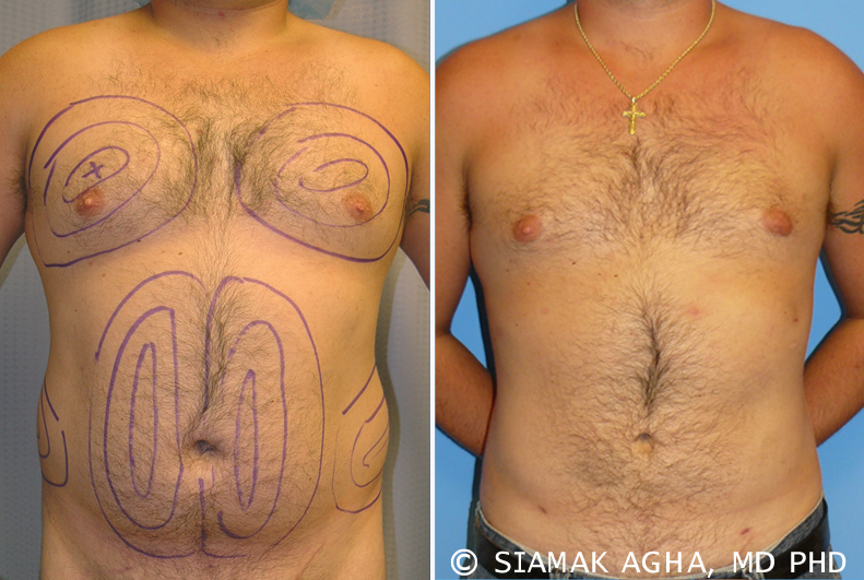 Newport Beach Male Breast Reduction