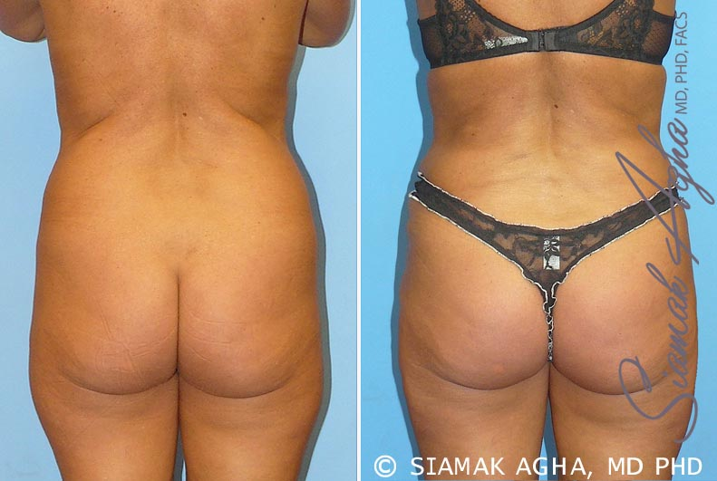 Orange County Newport Beach Brazilian Butt Lift Patient 1
