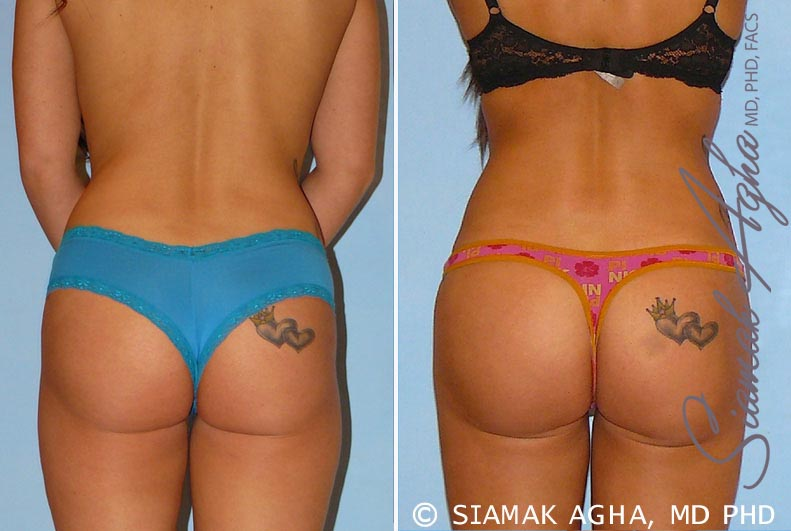 Orange County Newport Beach Brazilian Butt Lift Patient 12