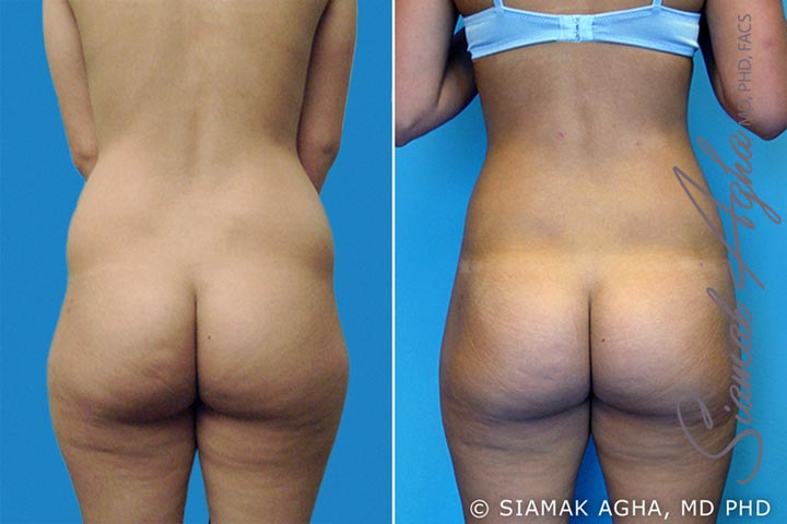 Orange County Newport Beach Brazilian Butt Lift Patient 2