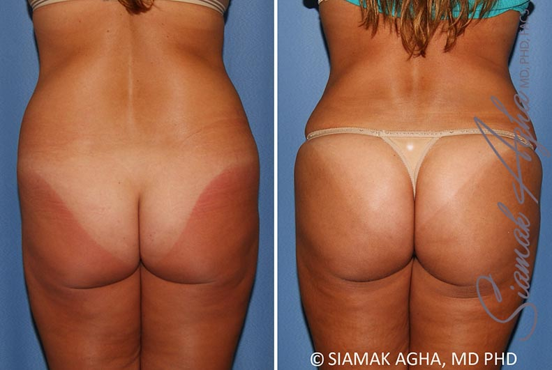 Orange County Newport Beach Brazilian Butt Lift Patient 30