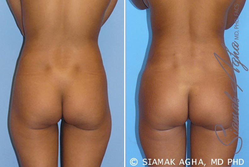 Orange County Newport Beach Brazilian Butt Lift Patient 5