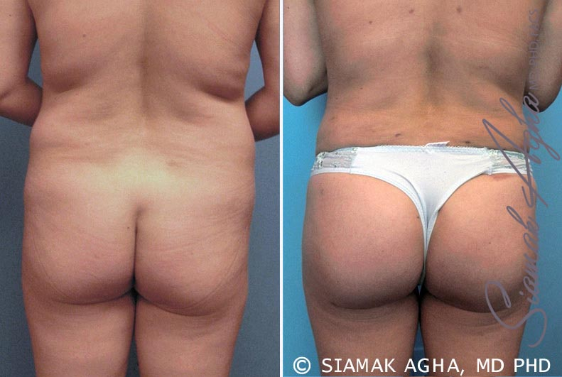 Orange County Newport Beach Brazilian Butt Lift Patient 6