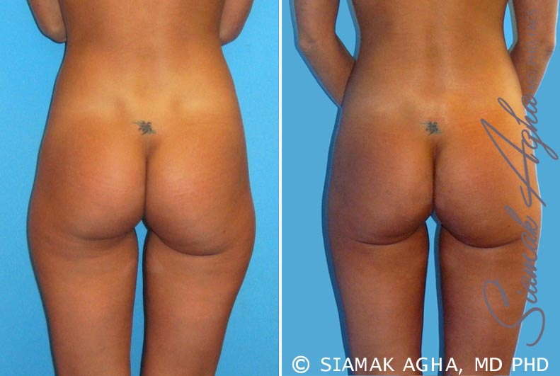 Orange County Newport Beach Brazilian Butt Lift Patient 7