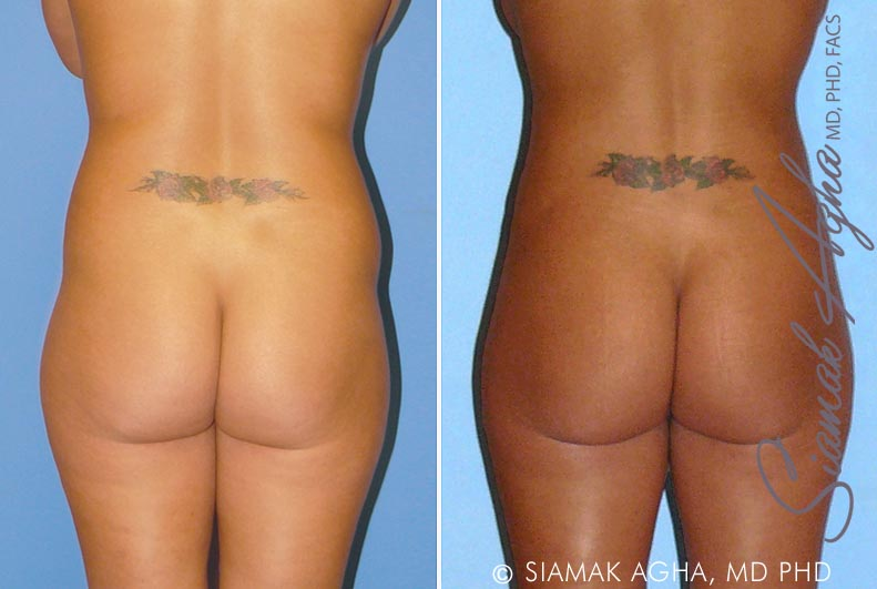 Orange County Newport Beach Brazilian Butt Lift Patient 8