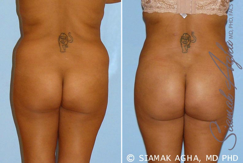 Orange County Newport Beach Brazilian Butt Lift Patient 9