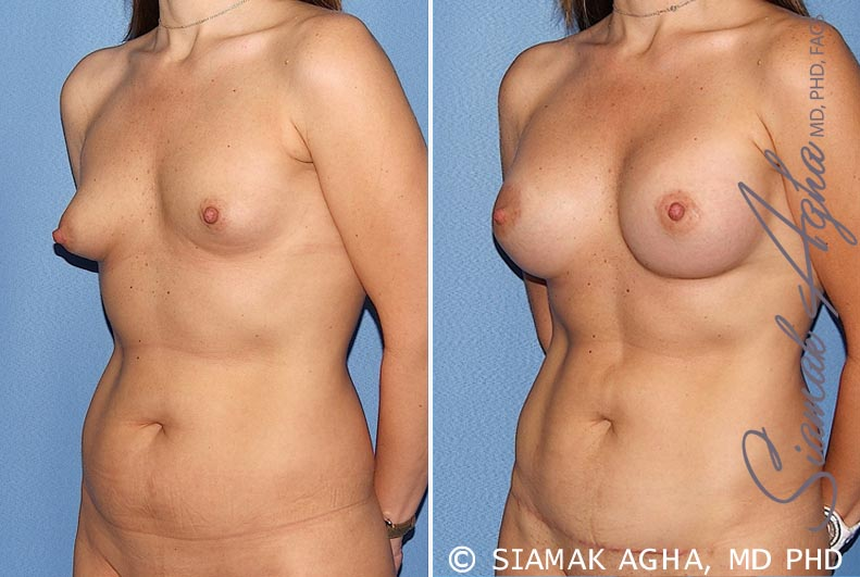 Orange County Newport Beach Breast Asymmetry 5 Front Left View