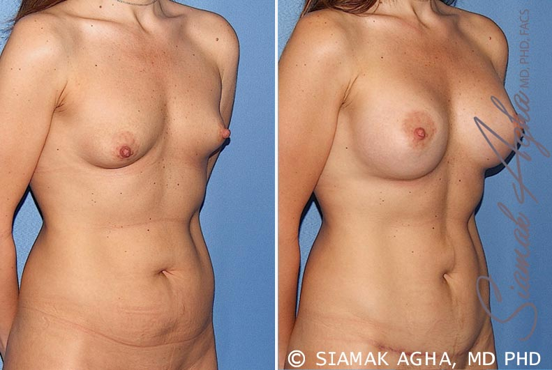 Orange County Newport Beach Breast Asymmetry 5 Front Right View