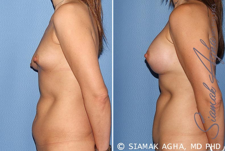 Orange County Newport Beach Breast Asymmetry 5 Left View