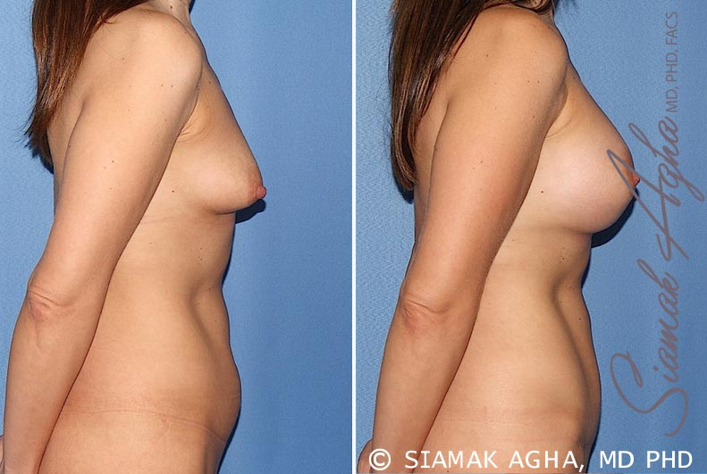 Orange County Newport Beach Breast Asymmetry 5 Right View