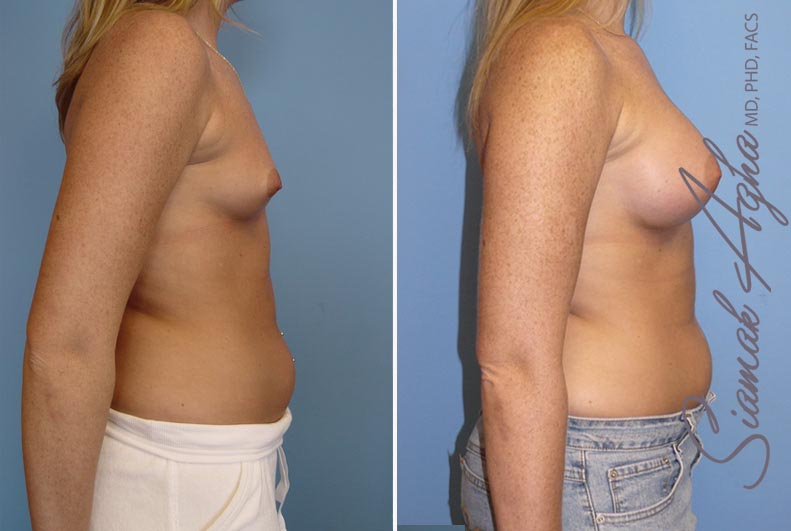 Orange County Newport Beach breast augmentation 12 Right View
