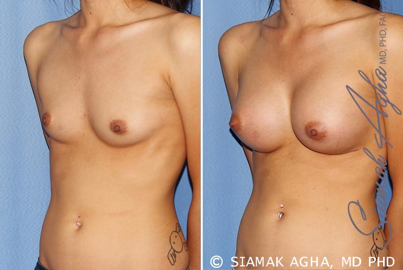 Orange County Newport Beach breast augmentation 25 Front Left View