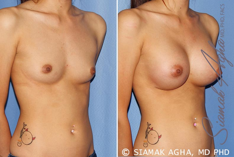 Orange County Newport Beach breast augmentation 25 Front Right View