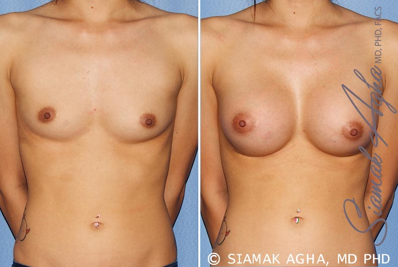 Orange County Newport Beach breast augmentation 25 Front View