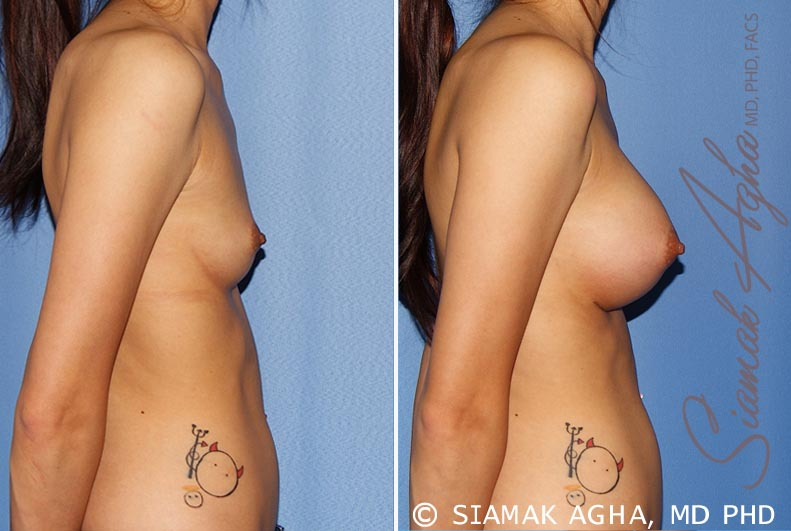 Orange County Newport Beach breast augmentation 25 Right View