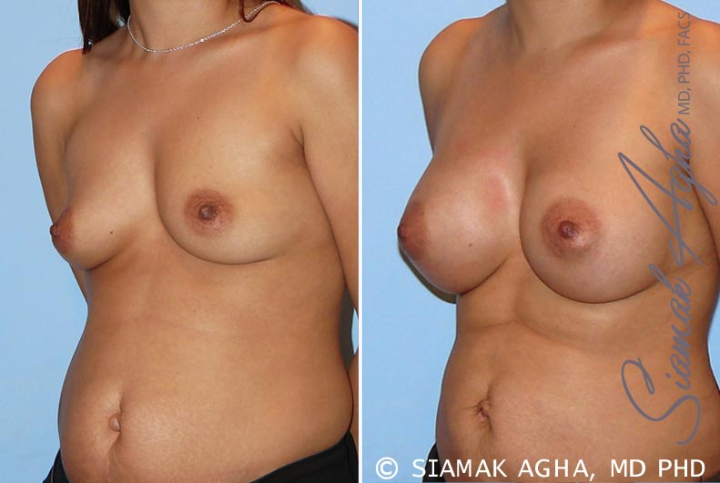 Orange County Newport Beach breast augmentation 26 Front Left View
