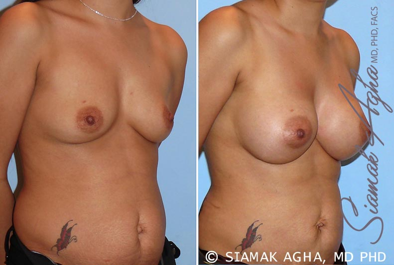 Orange County Newport Beach breast augmentation 26 Front Right View