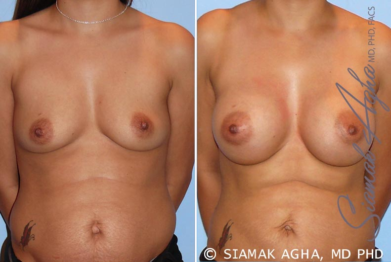 Orange County Newport Beach breast augmentation 26 Front View