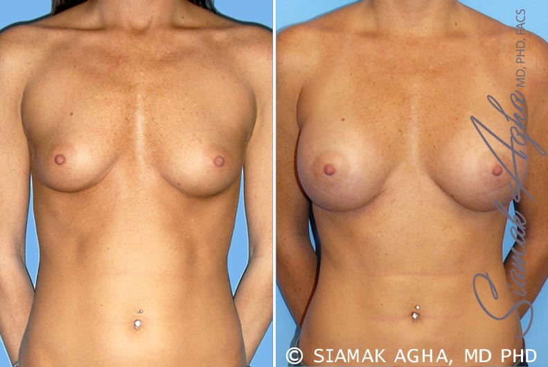 Orange County Newport Beach breast augmentation 30 Front View