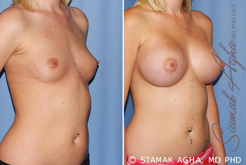 Orange County Newport Beach breast augmentation 37 Front Right View