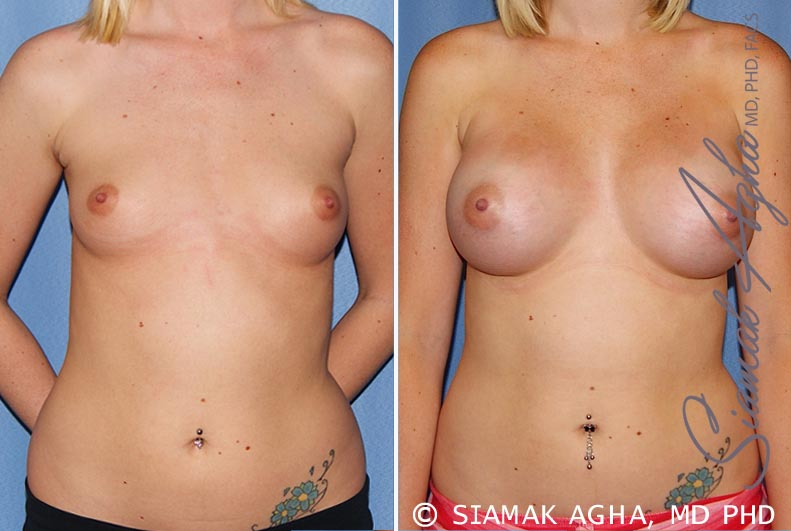 Orange County Newport Beach breast augmentation 37 Front View