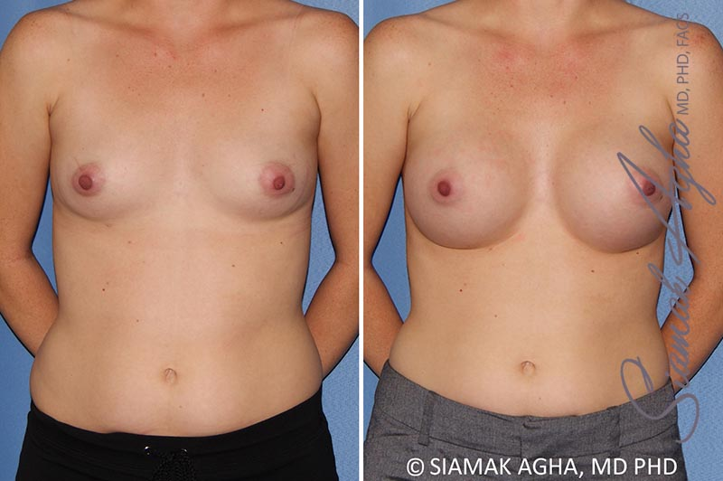 Orange County Newport Beach breast augmentation 38 Front View
