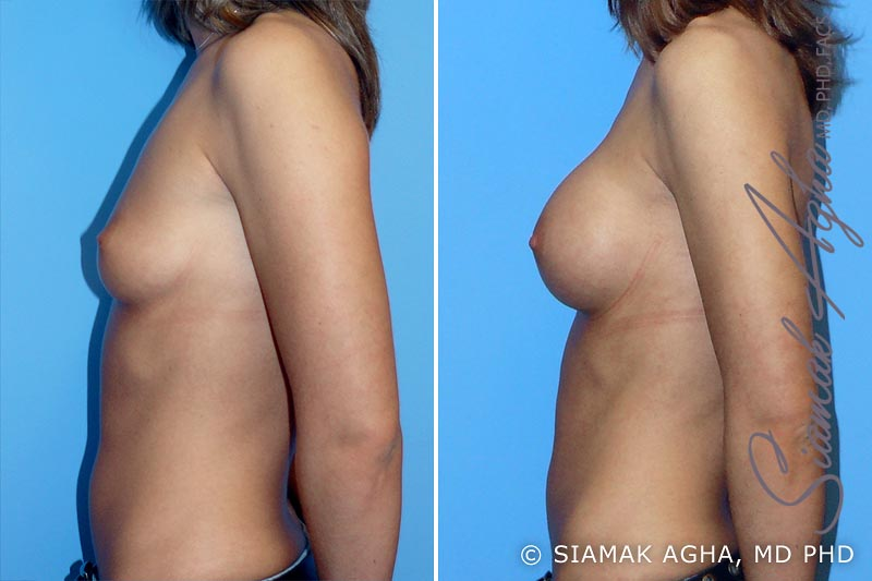Orange County Newport Beach breast augmentation 6 Left View