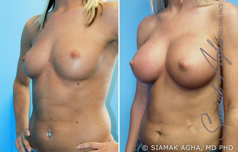Orange County Newport Beach breast augmentation 8 Front Left View