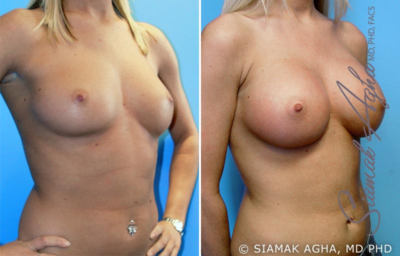 Orange County Newport Beach breast augmentation 8 Front Right View
