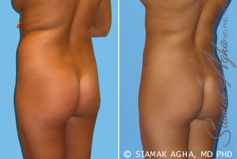 Orange County Newport Beach Liposuction 2 Back Left View