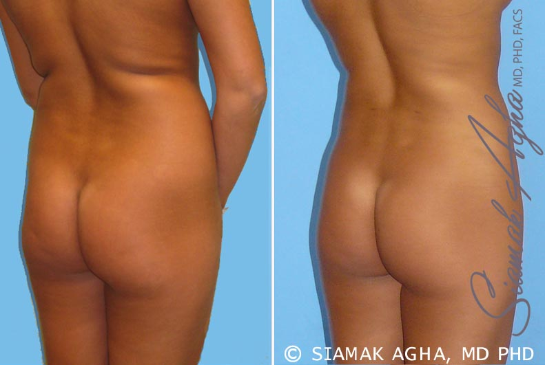 Orange County Newport Beach Liposuction 2 Back Right View