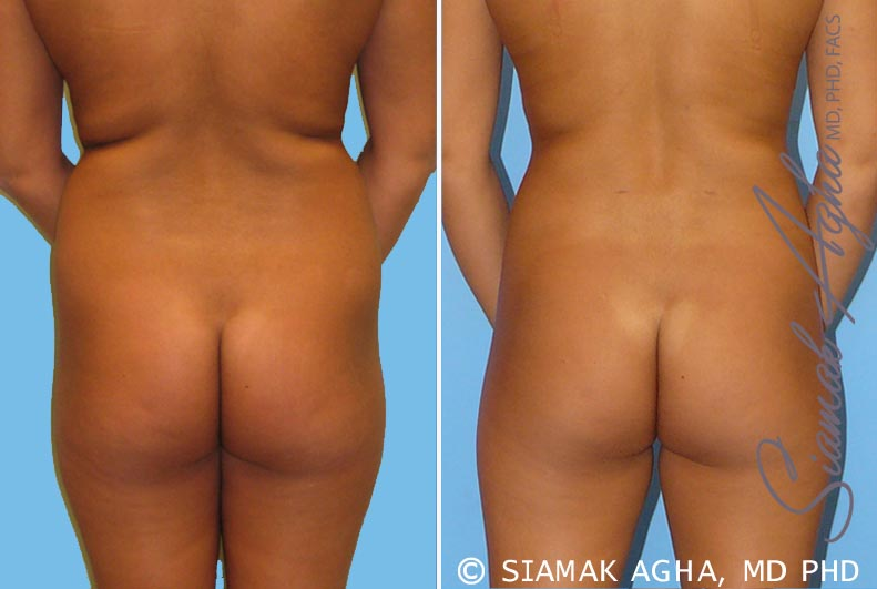 Orange County Newport Beach Liposuction 2 Back View
