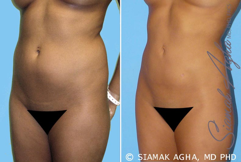 Orange County Newport Beach Liposuction 2 Front Left View