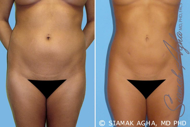 Orange County Newport Beach Liposuction 2 Front View