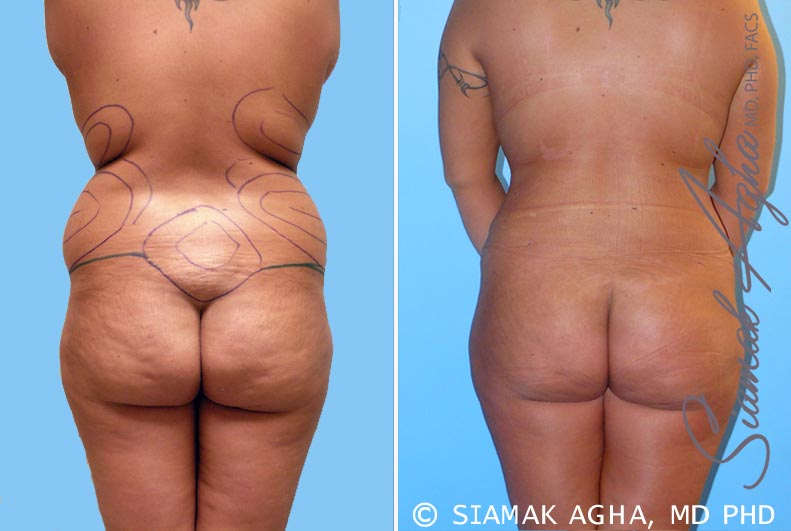 Orange County Newport Beach Liposuction 4 Back View