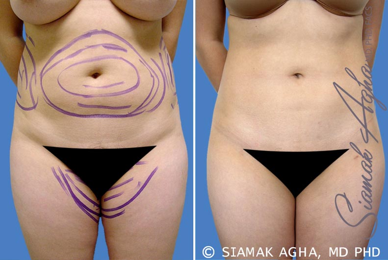 Orange County Newport Beach Liposuction 5 Front View