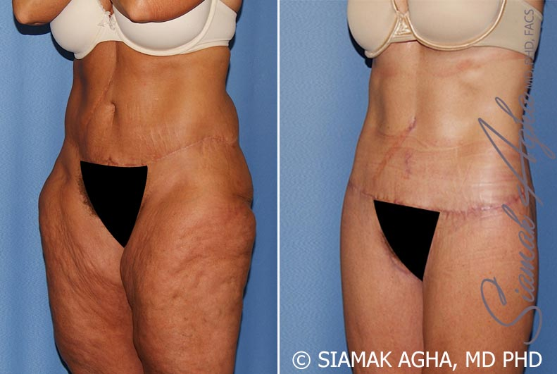 Lower Body Lift Before & After Photos Patient #8 in Orange