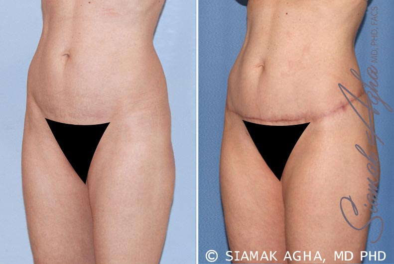 Lower Body Lift Before & After Photos Patient #13 in