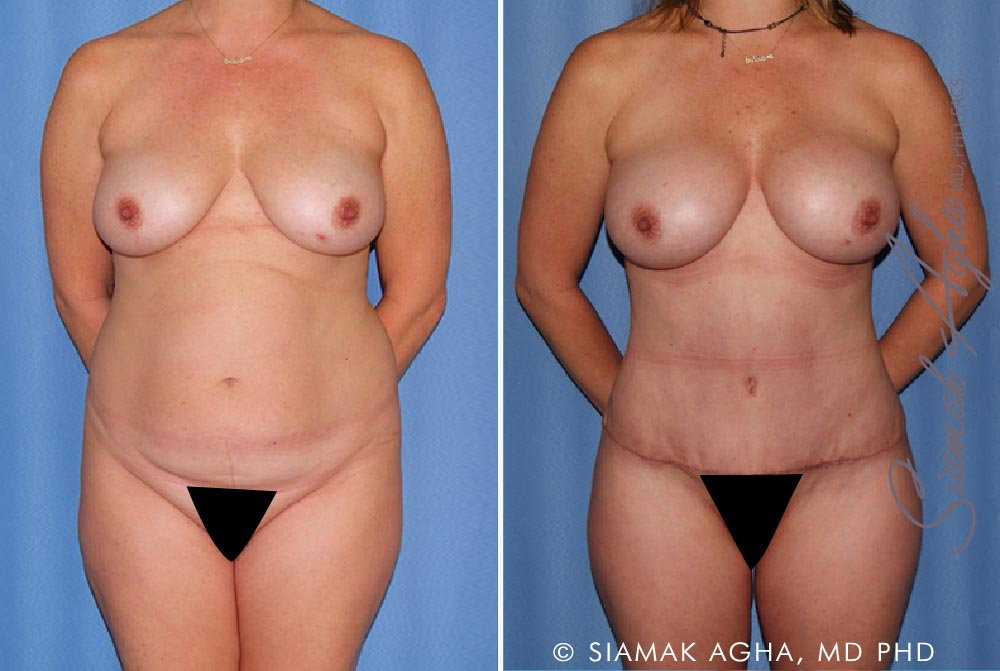 Orange County Newport Beach Mommy Makeover Patient 13