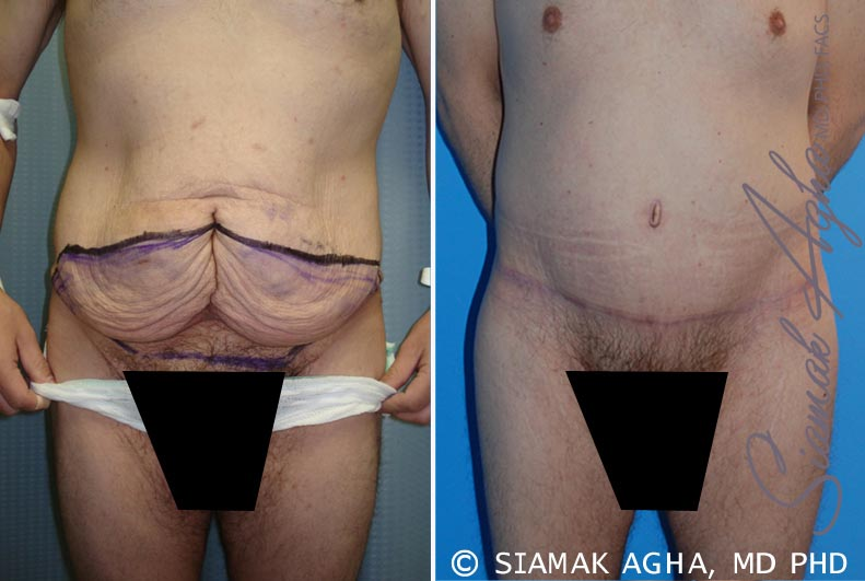 Orange County Newport Beach Tummy Tuck Patient 10