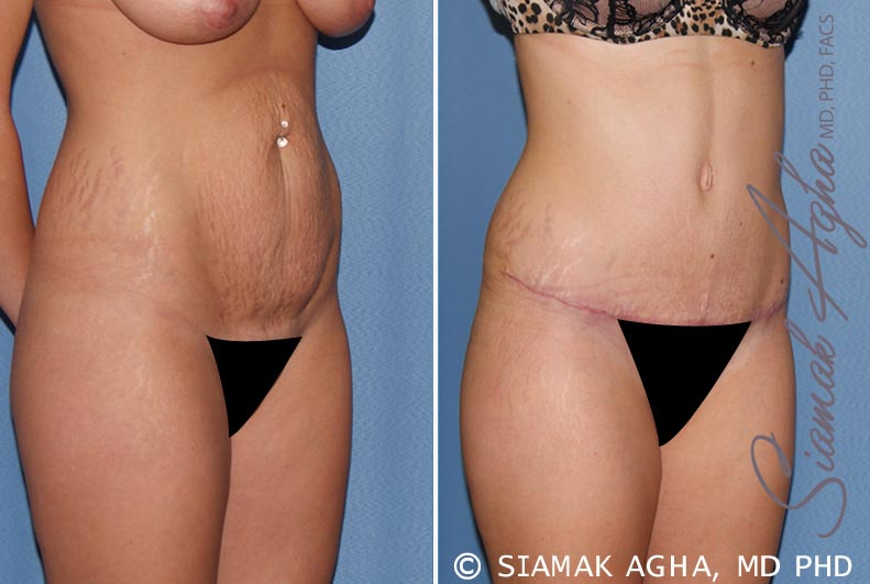Orange County Newport Beach Tummy Tuck 19 Front Right View