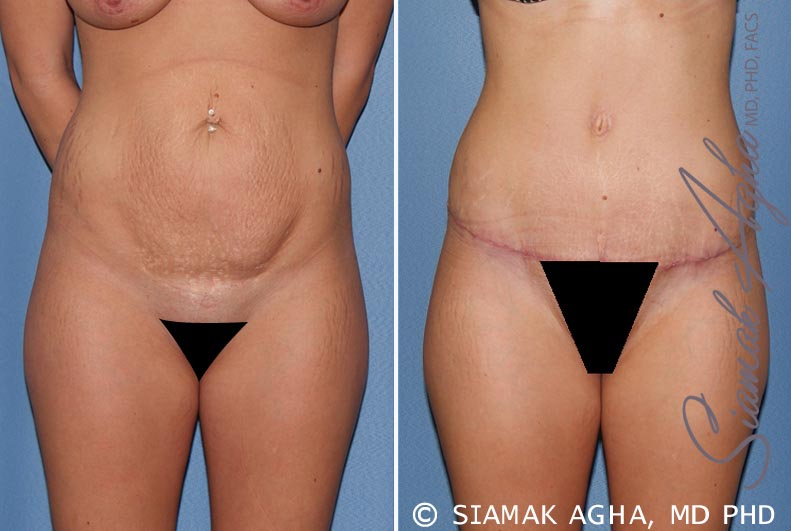 Orange County Newport Beach Tummy Tuck 19 Front View