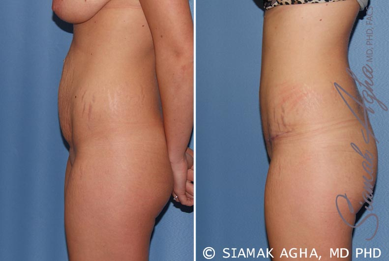 Orange County Newport Beach Tummy Tuck 19 Left View