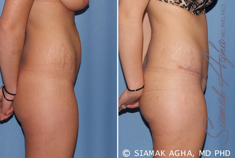 Orange County Newport Beach Tummy Tuck 19 Right View