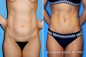 Orange County Newport Beach Tummy Tuck Patient 2