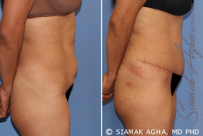 Orange County Newport Beach Tummy Tuck 21 Right View