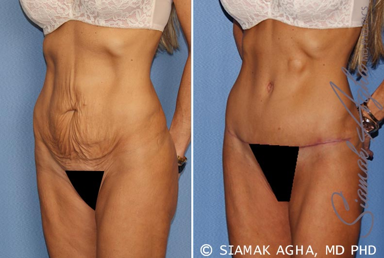 Orange County Newport Beach Tummy Tuck 24 Front Left View