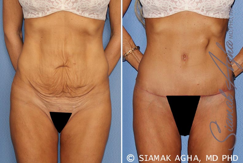Orange County Newport Beach Tummy Tuck Patient 24